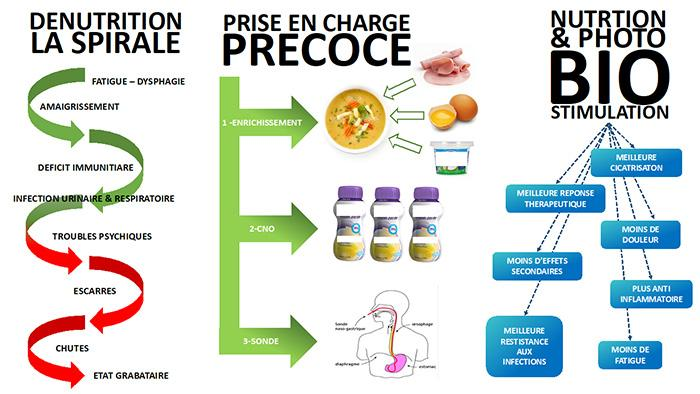 dénutrition infographie